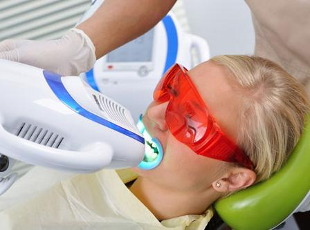 Аппаратное отбеливание зубов
