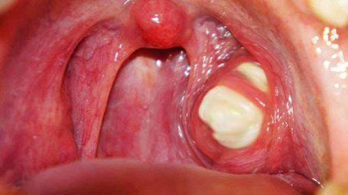 Белые комки в горле источают неприятный запах