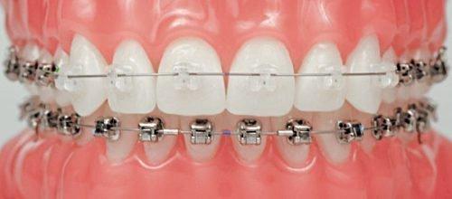 Брекеты на зубах выравнивают прикус, но портят эмаль