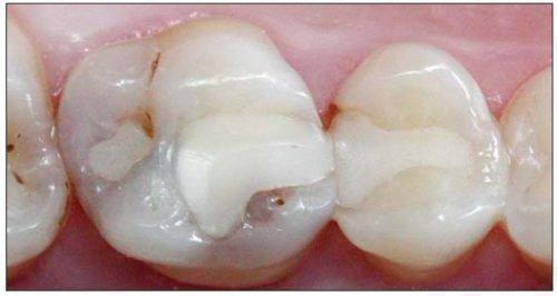 Откололась часть пломбы в зубе