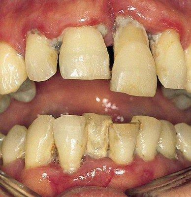 Четвертая стадия - выпадения зубов