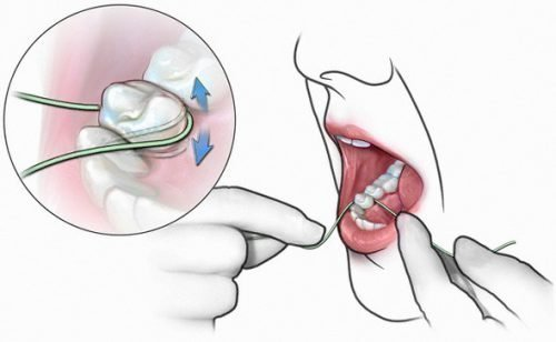 Чистка зубов флоссом