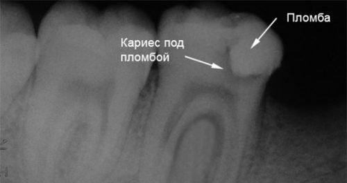 Рентген диагностика кариеса под пломбой
