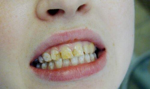 Начальный флюороз на зубах