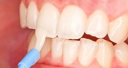 Поверхностное фторирование эмали зубов