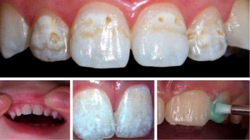 Фторирование зубов позволяет защитить эмаль