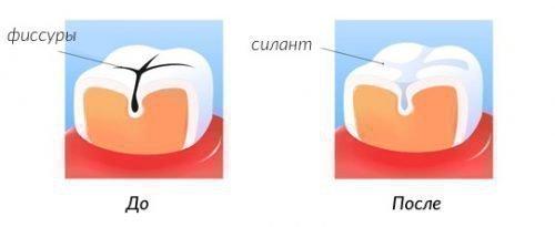 Герметизация фиссур препаратом на основе силанта