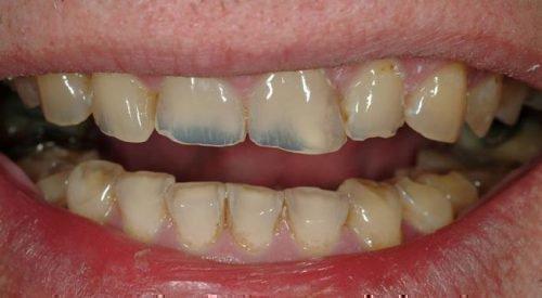 Истончение эмали зубов