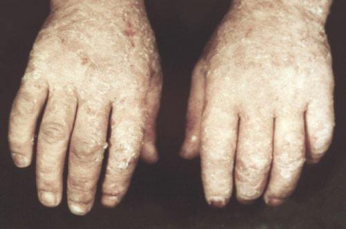 Экзема на руках при йодизме