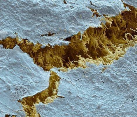 Поврежденная эмаль под микроскопом