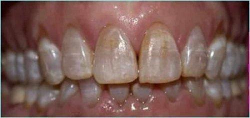 Возрастная эрозия эмали зубов