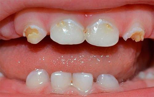 Эрозия эмали зубов у ребенка