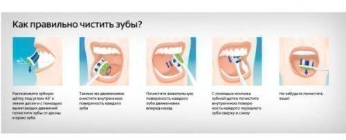 Как чистить зубы - советы