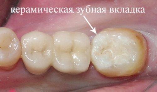 Керамическая вкладка в зубе