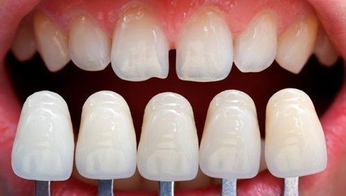 Керамические виниры для передних зубов