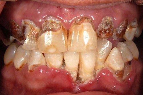 множественные поражения зубов