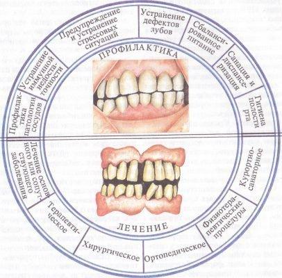 Лечение и профилактика болезни пародонтоз