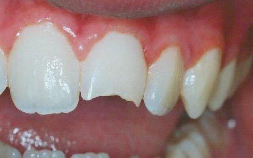 Механическая травма зуба