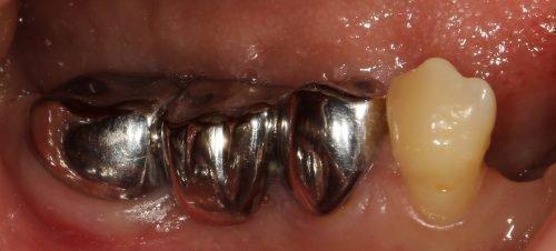 Металлические коронки зубов