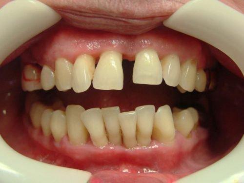 Расхождение зубов при пародонтозе