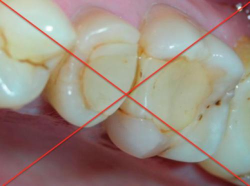 Некачественные пломбы в зубе