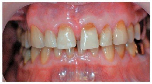 Клиновидный некроз на зубах