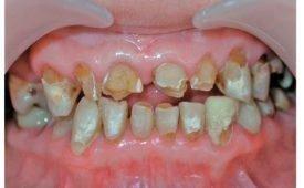 Кислотный некроз тканей зуба