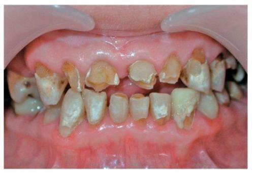 Кислотный некроз зубов - полное разрушение