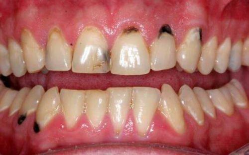 Начальный некроз зубов
