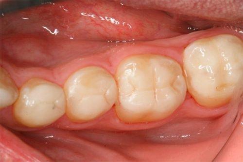 Неправильно сформированная пломба в зубе