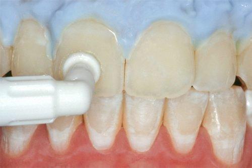 Обработка зубов фторсодержащим составом
