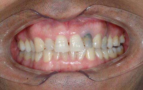 Омертвение тканей зуба под пломбой
