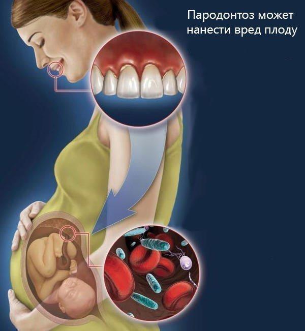 Опасность пародонтоза для беременных