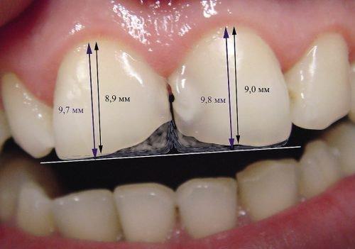 Диагностика сколов на зубах