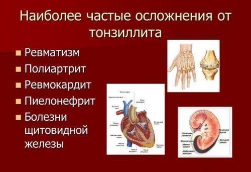 Осложнения и опасность тонзилита