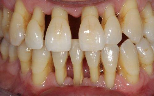 Пародонтоз - эстетическая проблема и требует протезирования зубов
