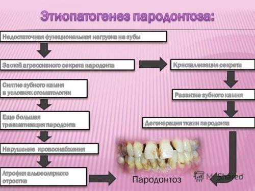 Патогенез пародонтоза - причины