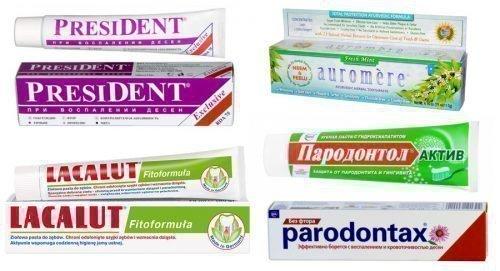 Зубные пасты при пародонтозе