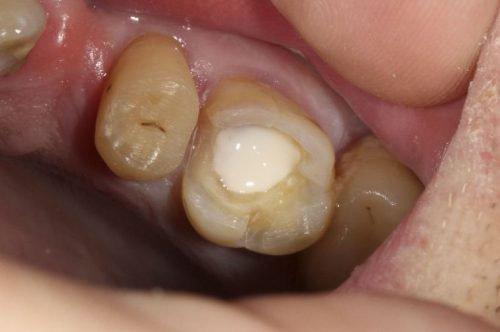 Пломба в зубе до шлифовки