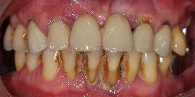 Подвижность зубов при пародонтозе