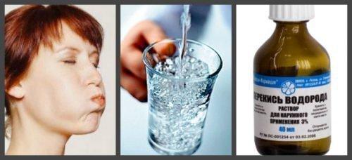 Этапы полоскания рта перекисью