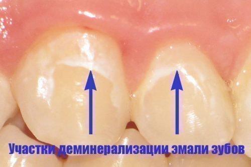После снятия брекетов могут быть деминерализованные участки на зубах