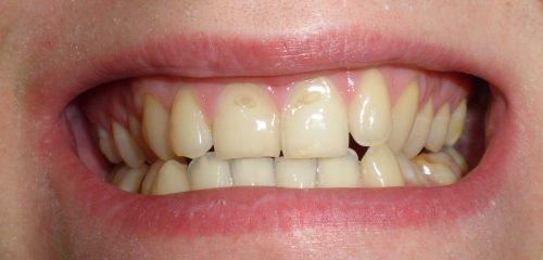 Разрушение верхнего слоя зубов