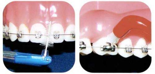Правильная чистка зубов с брекетами