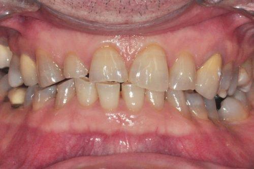Стирание зубов при бруксизме