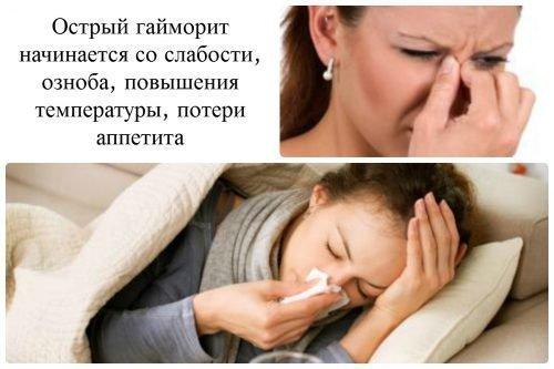 Гайморит - причина галитоза