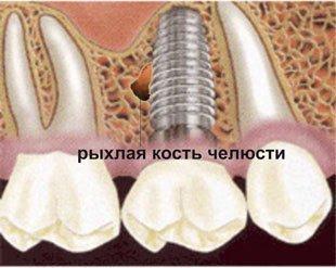 Причина пародонтоза болезни костей чеслюстей