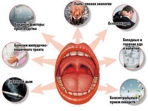 Причины тонзилита и его обоестрения
