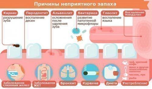 Причины запаха изо-рта