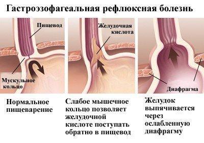Проблема ЖКТ, рефлюксная болезнь - причина запаха крови во рту